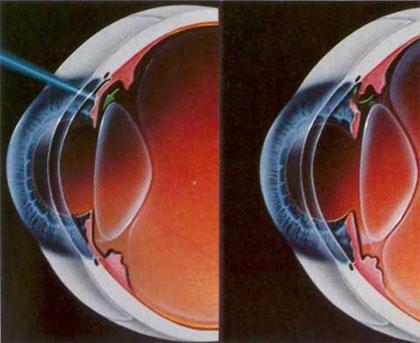 Lazerle göz tansiyonu tedavisi