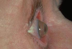 Uzun süreli veya hatalı lens kullanıma bağlı olarak gelişebilen hastalıklardan Keratakonus