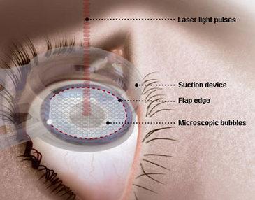 Lazerli göz tedavisi ve ameliyatı